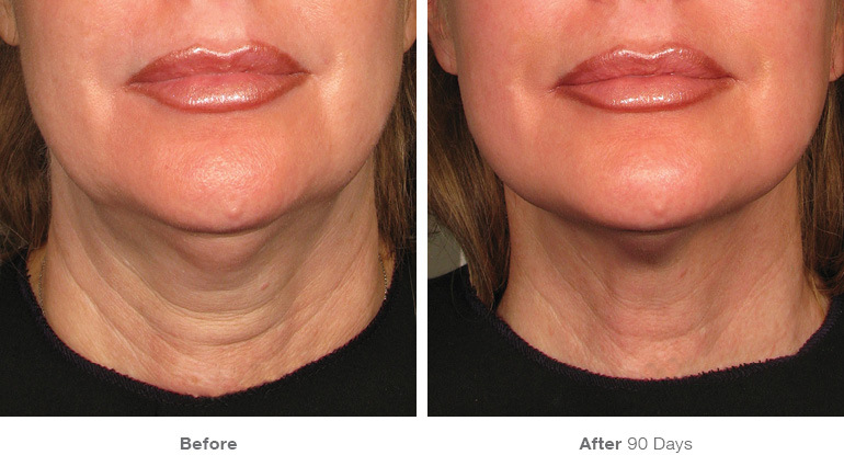 VIOLA Echo - Skin Lifting & Tightening Machine before and after therapy