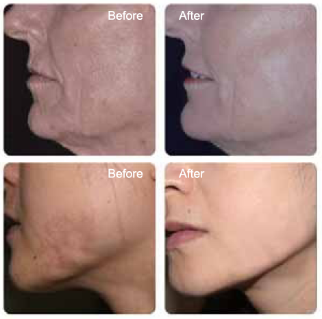 After and before clinical data of fractional scanner integrated CO2 laser system
