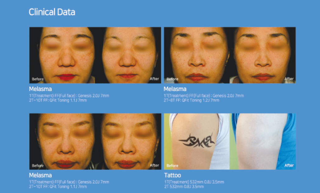 Clinical data of QFIT Q-Switched ND: YAG Laser
