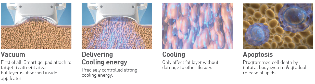 Principles of treatment of MICOOL - A Cryo Fat Reduction Machine