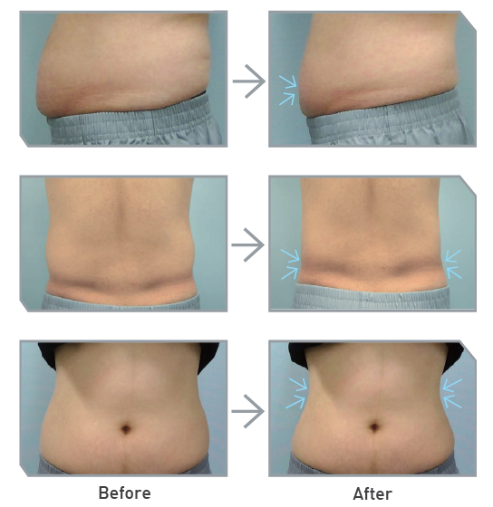 Treatment Results of MICOOL - A Cryo Fat Reduction Machine