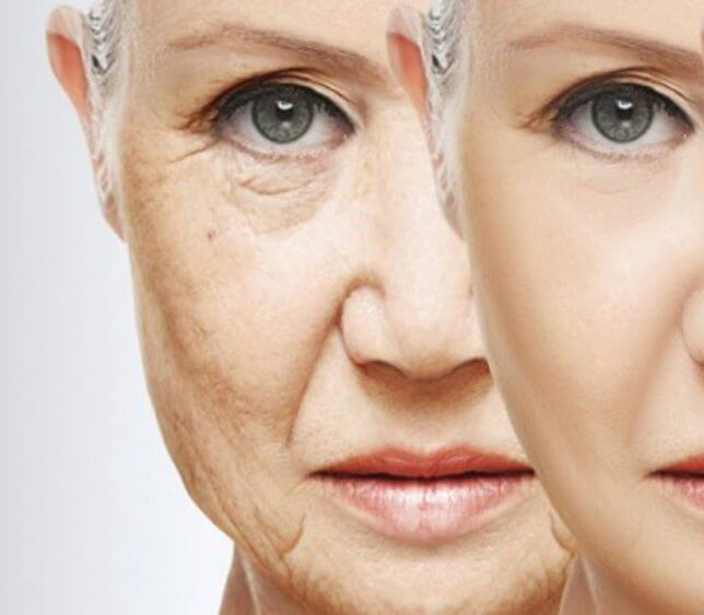 aging-image-ov